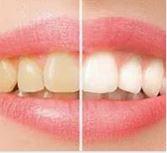 Adelaide teeth whitening experts